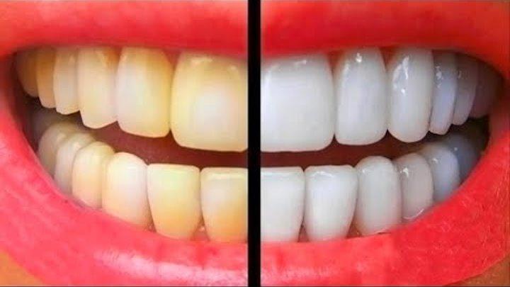 Пероксид карбамида для отбеливания зубов