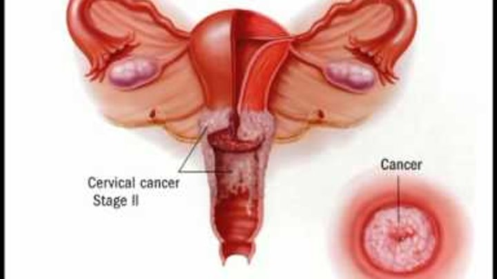 causes and treatment of cervix cancer Treatment for early-stage cervical cancer, when it is confined to the cervix, has a good success rate the further the cancer has spread out of the area it originated from, the lower the success.