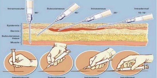 Как правильно сделать себе укол в мышцу