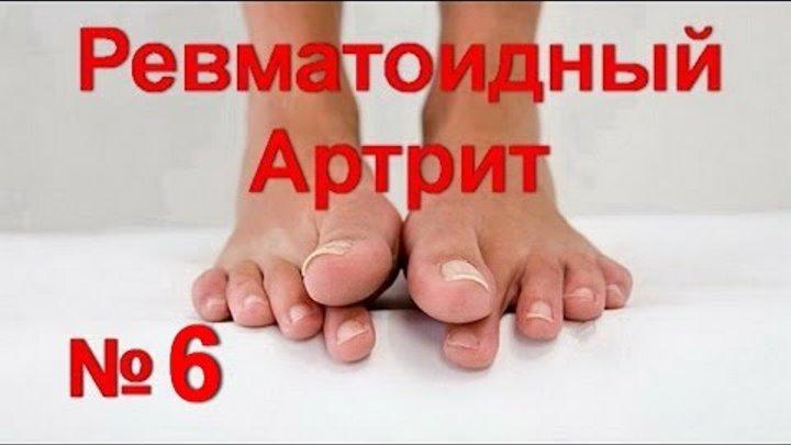Мазь против воспаления сустава ног