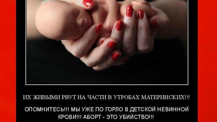 ПРОЩАЕТ ЛИ БОГ ГРЕХ АБОРТА ПРИ ПОКАЯНИИ? Протоиерей Дмитрий Смирнов.