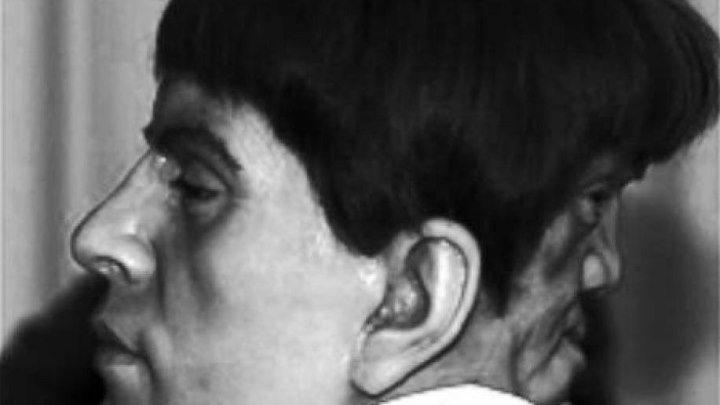 Эдвард Мордрейк — человек, у которого было два лица