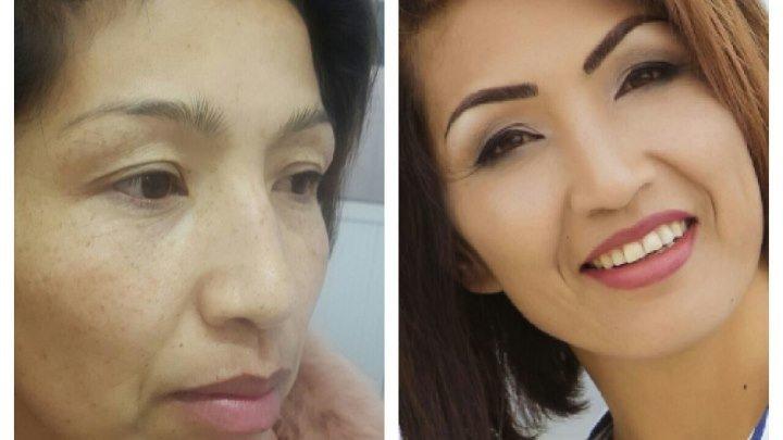 Проект Өзгөрүү! Клиники Дерматокосметологии Айнуры Сагынбаевой