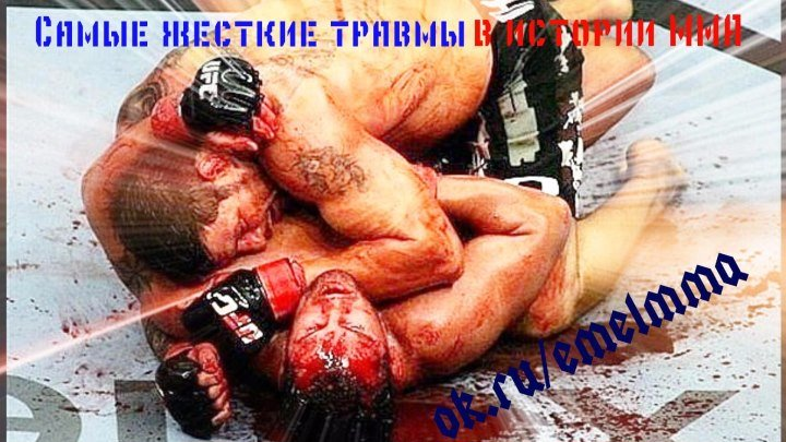 ★ Самые жесткие (ужасные) травмы в истории MMA ★