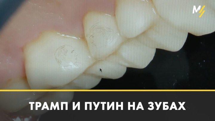 Пациенту имплантировали зубы с Трампом и Путиным