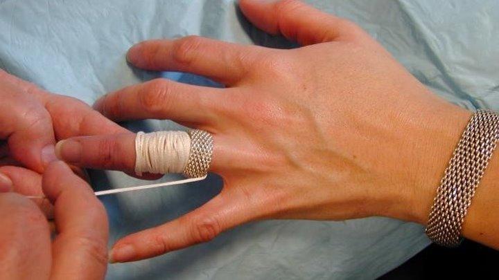 Лучший способ получить кольцо с опухшим палец