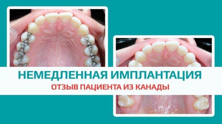Имплантация жевательных зубов за 1 день. Отзыв пациента из Канады