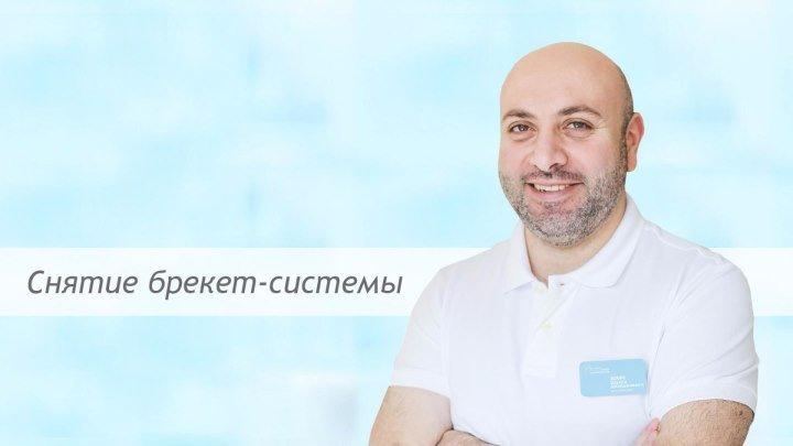 Снятие брекет-системы в стоматологии «Виртуоз»