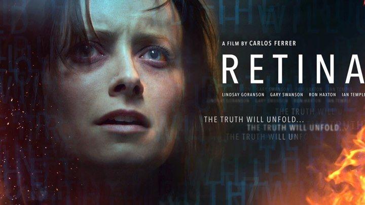 Сетчатка (2017) Retina