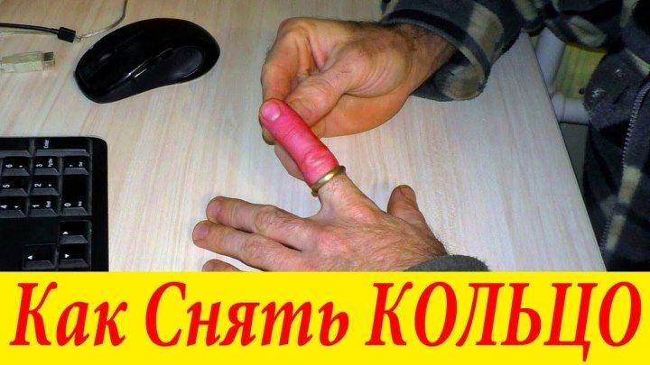 Как снять кольцо с опухшего пальца. Лучший способ!