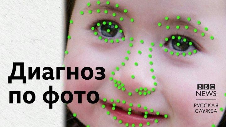 Искуственный интеллект ставит диагноз по фото