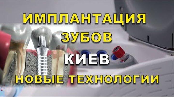 Имплантация зубов Киев - Новые технологии