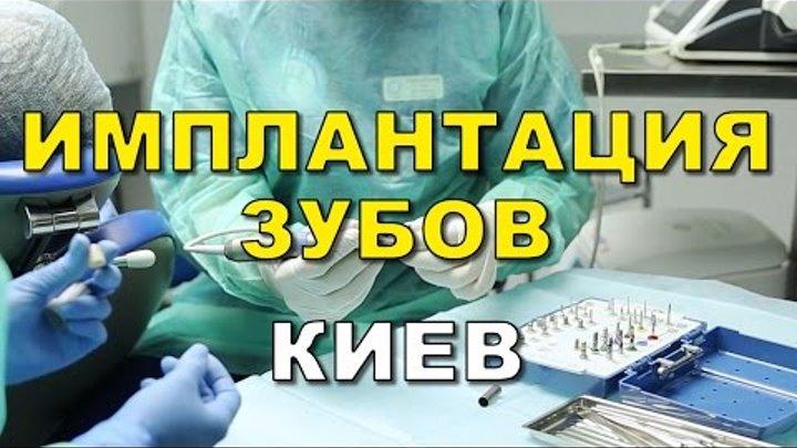 Имплантация зубов Киев отзывы цена (видео)