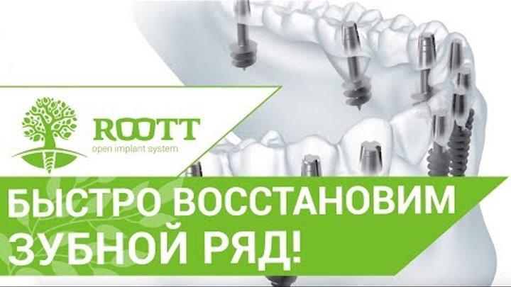 Имплантация зубов новые технологии. 🤓 Система ROOTT применяет новейшие технологии в имплантации.