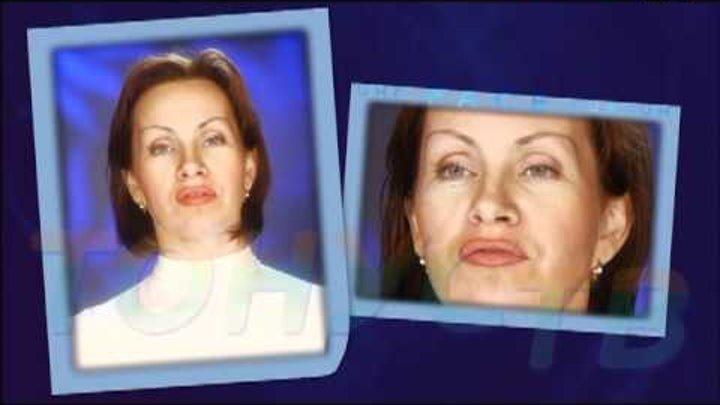 FaceЛифтинг (2) на Тонус ТВ