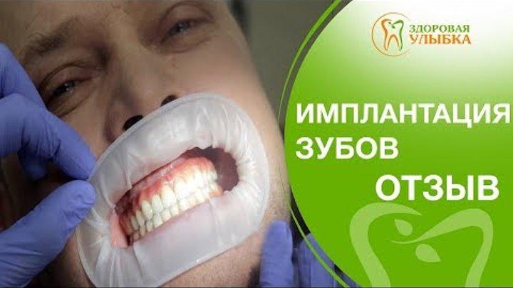Имплантация зубов как делают. 👄Отзыв пациента о том, как делают имплантацию зубов в Здоровой улыбке.