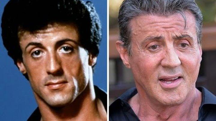 22 знаменитых мужчин/ После пластической операции