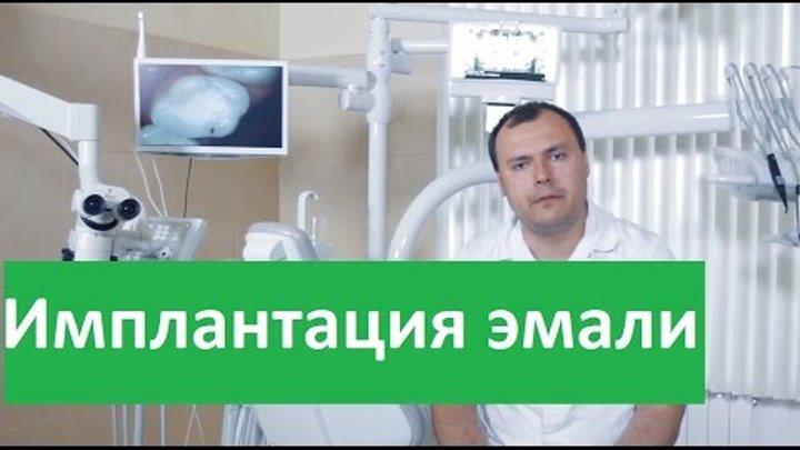 Имплантация эмали. Клиника Совершенство об имплантации эмали зубов.