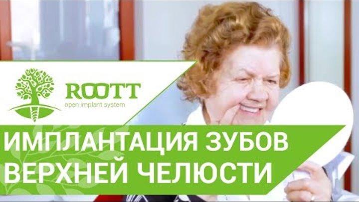 Отзыв об однофазной ROOTT имплантации после 80 лет. 😄 Система имплантации ROOTT