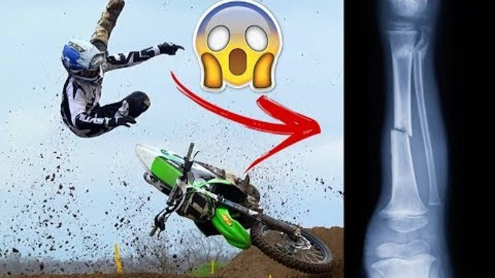 INSANE MOTOCROSS AND SUPERCROSS CRASHES | AMA & MXGP |