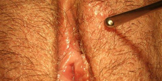 Генитальный герпес симптомы лечение фото причины